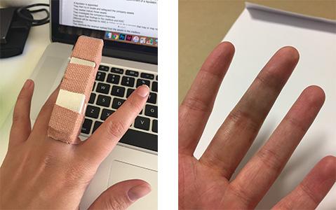 2016-finger
